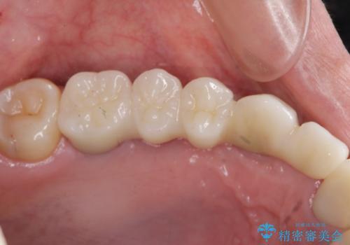 虫歯による多数歯欠損 インプラント咬合機能回復の治療後