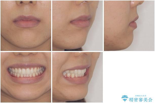 ディープバイトと前歯のデコボコを治したい インビザラインによる矯正治療の治療後(顔貌)