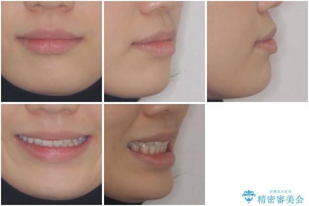 話しにくいオープンバイト インビザラインによる矯正治療の治療後(顔貌)