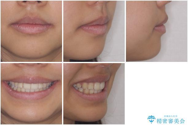 口が閉じられない 抜歯矯正で口元をスッキリとの治療後(顔貌)