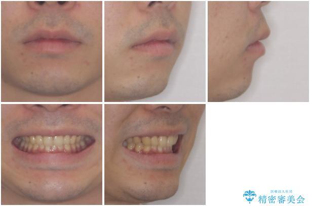 深い咬み合わせと前歯のデコボコの改善 インビザラインによる矯正治療の治療後(顔貌)