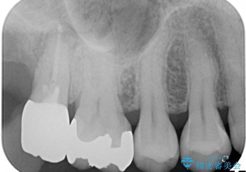 虫歯の治療 オールセラミッククラウンの治療後