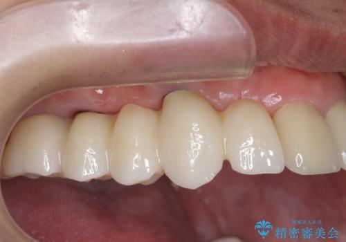 虫歯による多数歯欠損 インプラント咬合機能回復の症例 治療後