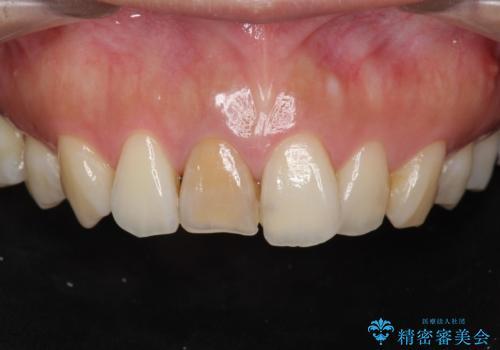 前歯の変色 根管治療と高品質セラミック歯科治療の症例 治療前