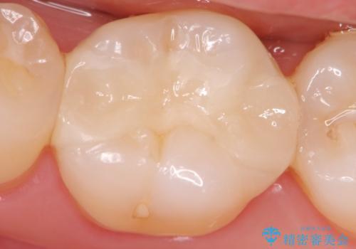 マイクロスコープ下で行う精密虫歯治療の治療後