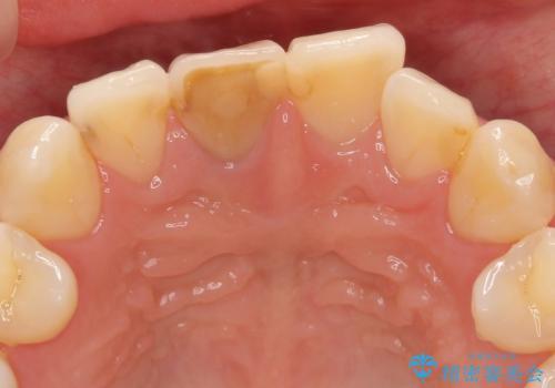 前歯の変色 根管治療と高品質セラミック歯科治療の治療前
