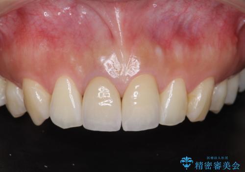 前歯の変色 根管治療と高品質セラミック歯科治療の症例 治療後