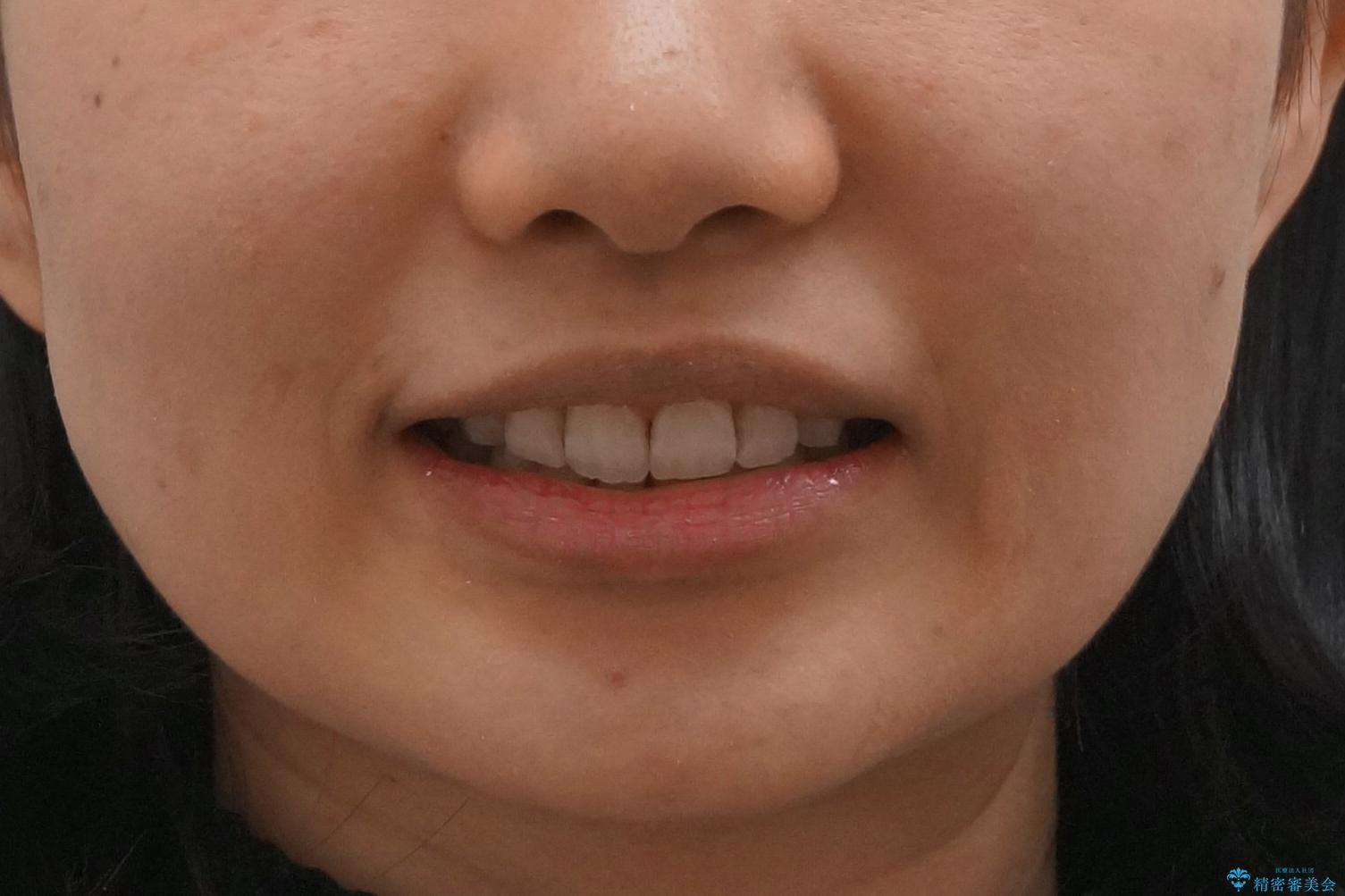 Eラインを整える治療 前歯を引っ込めますの治療後(顔貌)