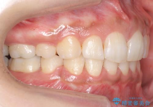 Eラインを整える治療 前歯を引っ込めますの治療後