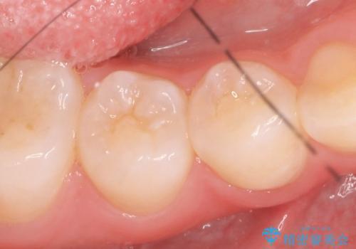セラミックインレー しみる歯の審美的治療の治療前