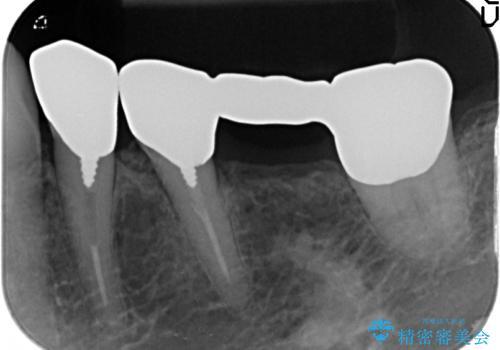 [奥歯のセラミック治療] 銀歯のブリッジを白くの治療前