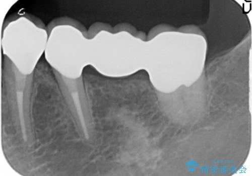 [奥歯のセラミック治療] 銀歯のブリッジを白くの治療後