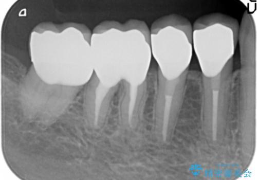 大臼歯 再根管治療の治療後