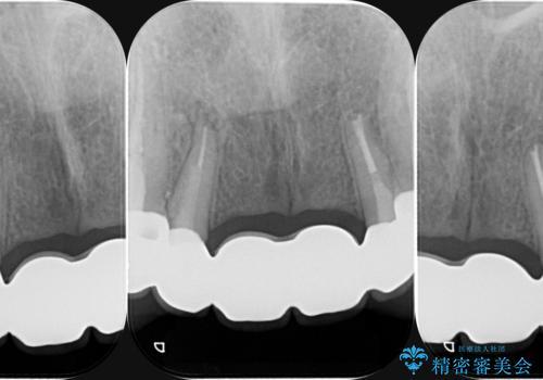 前歯 ブリッジ周囲の腫れた歯ぐきを改善の治療後
