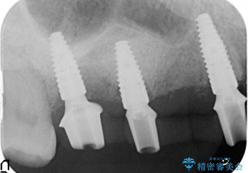 虫歯による多数歯欠損 インプラント咬合機能回復の治療中