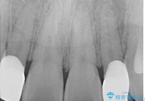 矮小歯(通常より小さな歯)をオールセラミックを装着して自然な歯への治療後