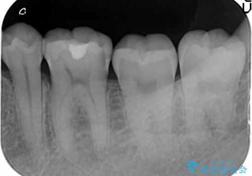 マイクロスコープ下で行う精密虫歯治療の治療前