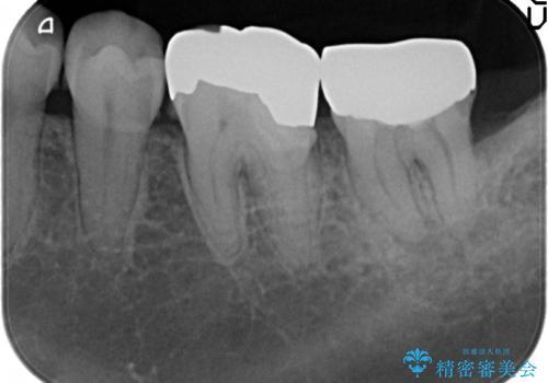オールセラミッククラウン 歯茎より深い虫歯の治療 神経が死んでる歯の治療の治療前