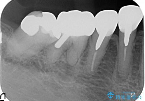 大臼歯 再根管治療の治療前