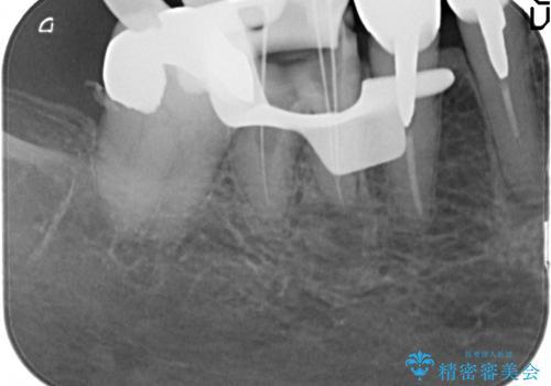 大臼歯 再根管治療の治療中