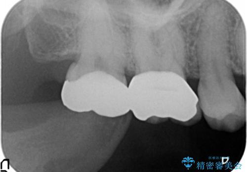 目立つ銀歯を白くしたいの治療後