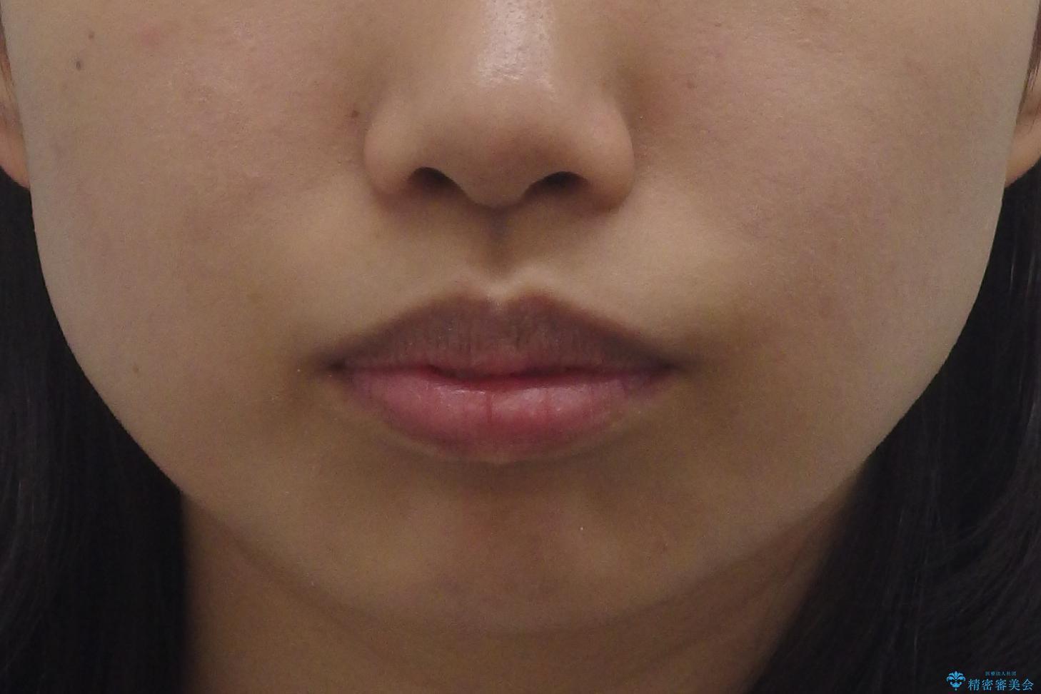 Eラインを整える治療 前歯を引っ込めますの治療前(顔貌)