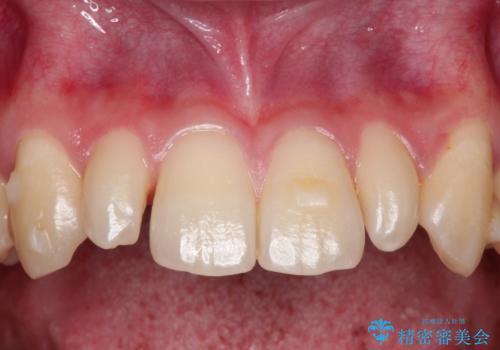 矮小歯(通常より小さな歯)をオールセラミックを装着して自然な歯への症例 治療前