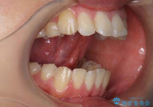 舌が持ち上がらない 舌小帯切除の治療後