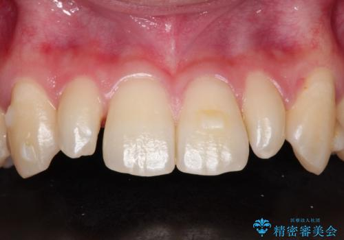 矮小歯(通常より小さな歯)をオールセラミックを装着して自然な歯への治療前