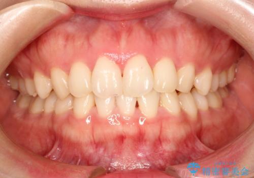 前歯のねじれをきれいにしたい インビザラインによる見えない矯正治療の治療前