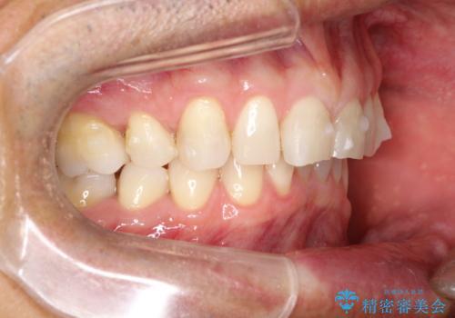 上の前歯の隙間とがたつきをインビザラインできれいな歯並びへの治療中