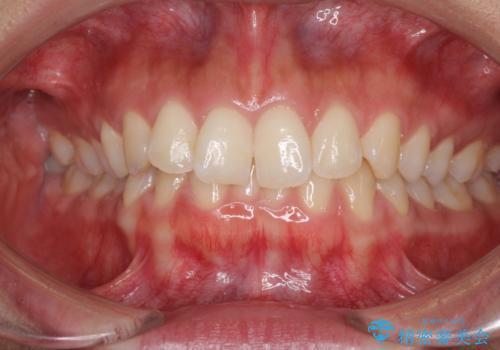 ディープバイトと前歯のデコボコを治したい <span class=