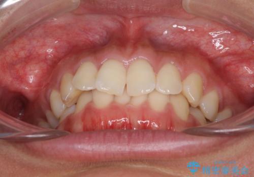 ディープバイトと前歯のデコボコを治したい インビザラインによる矯正治療の治療前