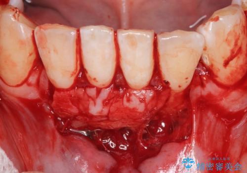 下顎前歯の歯肉退縮 結合組織を用いた根面被覆の治療後