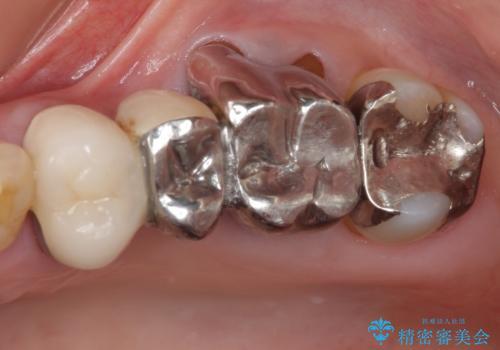 ものが挟まる 奥歯のセラミックブリッジ再製作の治療前