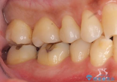 奥歯の虫歯 セラミックインレーにの治療後