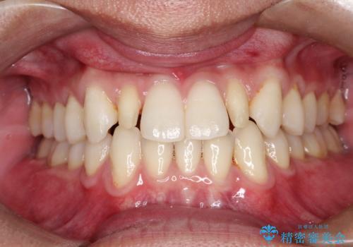 矮小歯(通常より小さな歯)をオールセラミックを装着して自然な歯への治療中