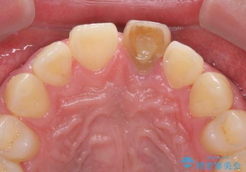 ぶつけた前歯 変色歯をオールセラミッククラウンにの治療前