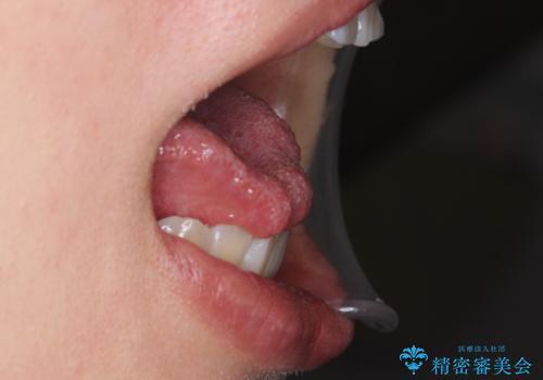 舌が持ち上がらない 舌小帯切除の治療前