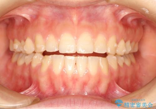 上下の前歯が当たらない インビザラインによる開咬の矯正治療の治療中