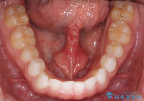 舌小帯を切りたい 発音を良くしたいの治療後