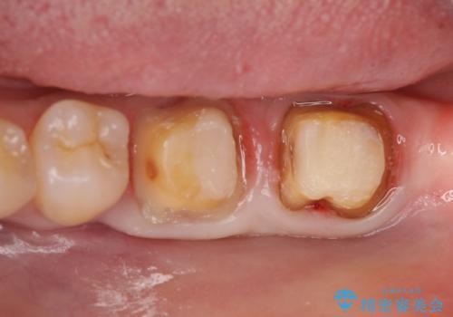 オールセラミッククラウン 歯茎より深い虫歯の治療 神経が死んでる歯の治療の治療中