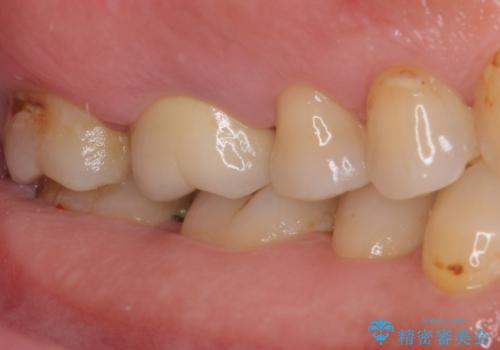 歯周外科処置を併用した奥歯の補綴治療の治療前