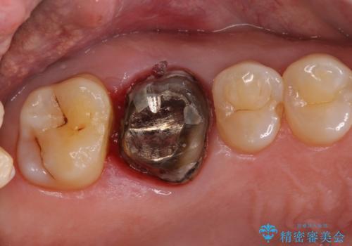 歯周外科処置を併用した奥歯の補綴治療の治療中