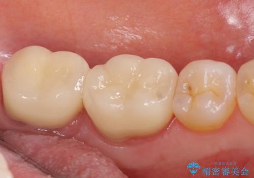 オールセラミッククラウン 歯茎より深い虫歯の治療 神経が死んでる歯の治療の治療後