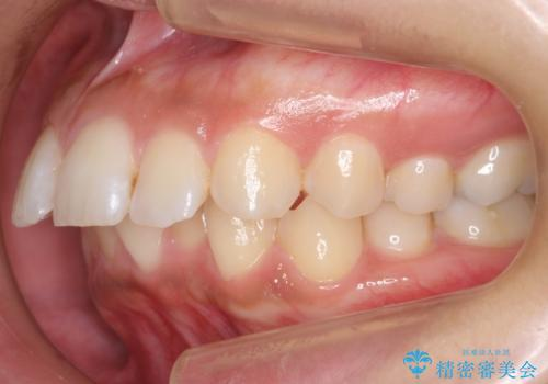 Eラインを整える治療 前歯を引っ込めますの治療前