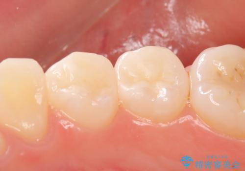 セラミックインレー しみる歯の審美的治療の治療後