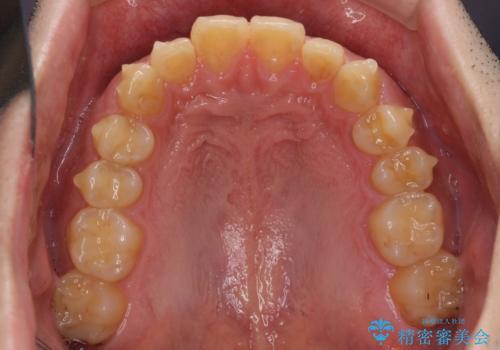 深い咬み合わせと前歯のデコボコの改善 インビザラインによる矯正治療の治療中