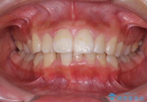 口が閉じられない 抜歯矯正で口元をスッキリとの治療前