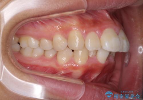 口が閉じられない 抜歯矯正で口元をスッキリとの症例 治療前